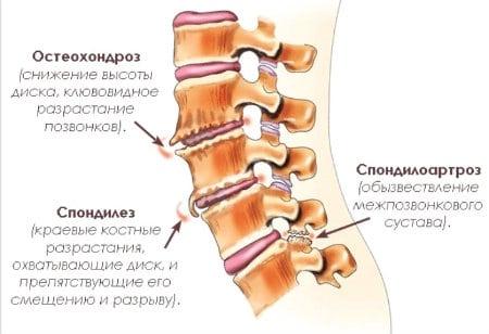 рисунки видов остеохондроза