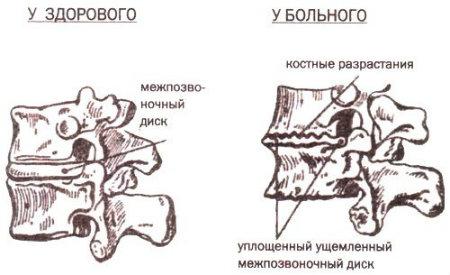 рисунок заболевания
