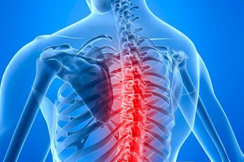 болевой синдром в грудном отделе позвоночника