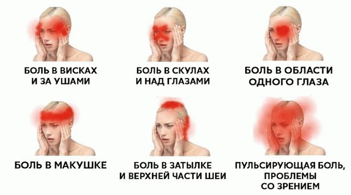 места головной боли