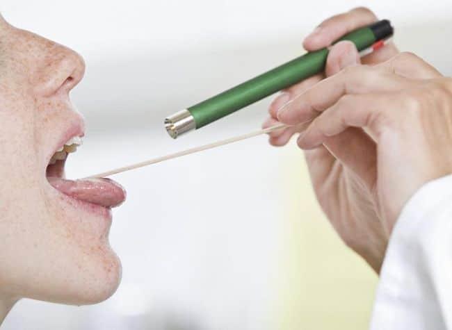 врач смотрит горло пациента
