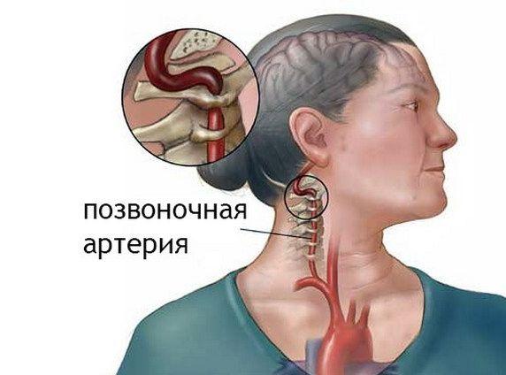 позвоночная артерия на теле человека