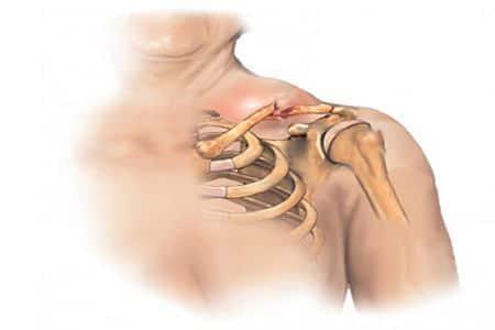рисунок распухшего плеча