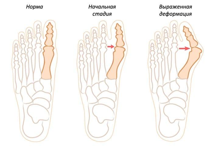 искривление косточки на разных стадиях