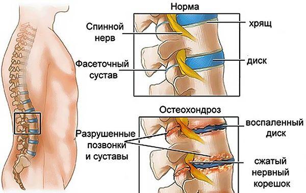 норма и заболевание позвоночника