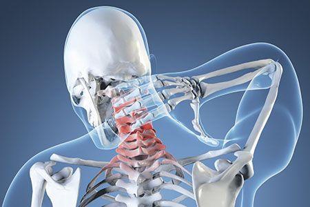 скелет мужчины держится за шею